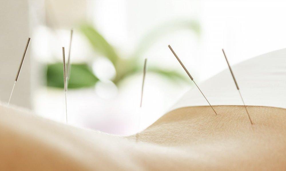 Akupunktur als Behandlungshilfe